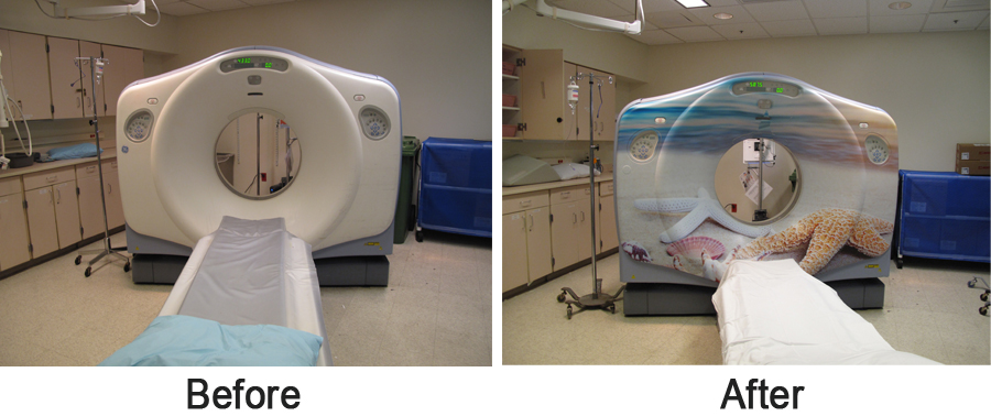 CT Scanner before and after the application of the graphics